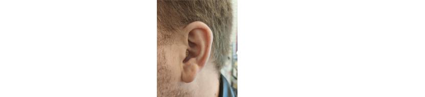 Внутриушной слуховой аппарат Sonic CHEER 20 CICW